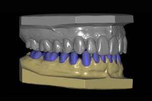 Wykorzystanie technologii CAD-CAM